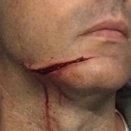 spfx face wound