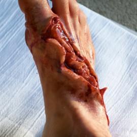 spfx foot wound